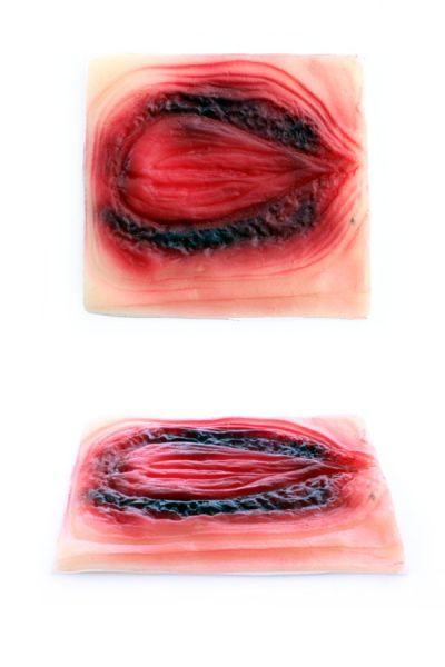 Litteken brandwond ovaal bloed